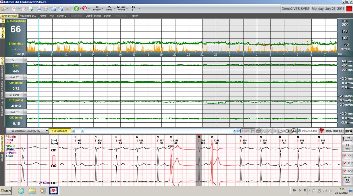 Cardiospy Ecranul principal