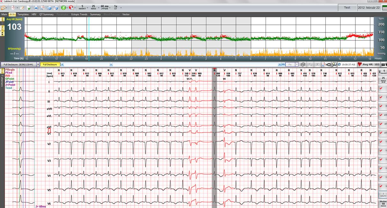 Cardiospy
