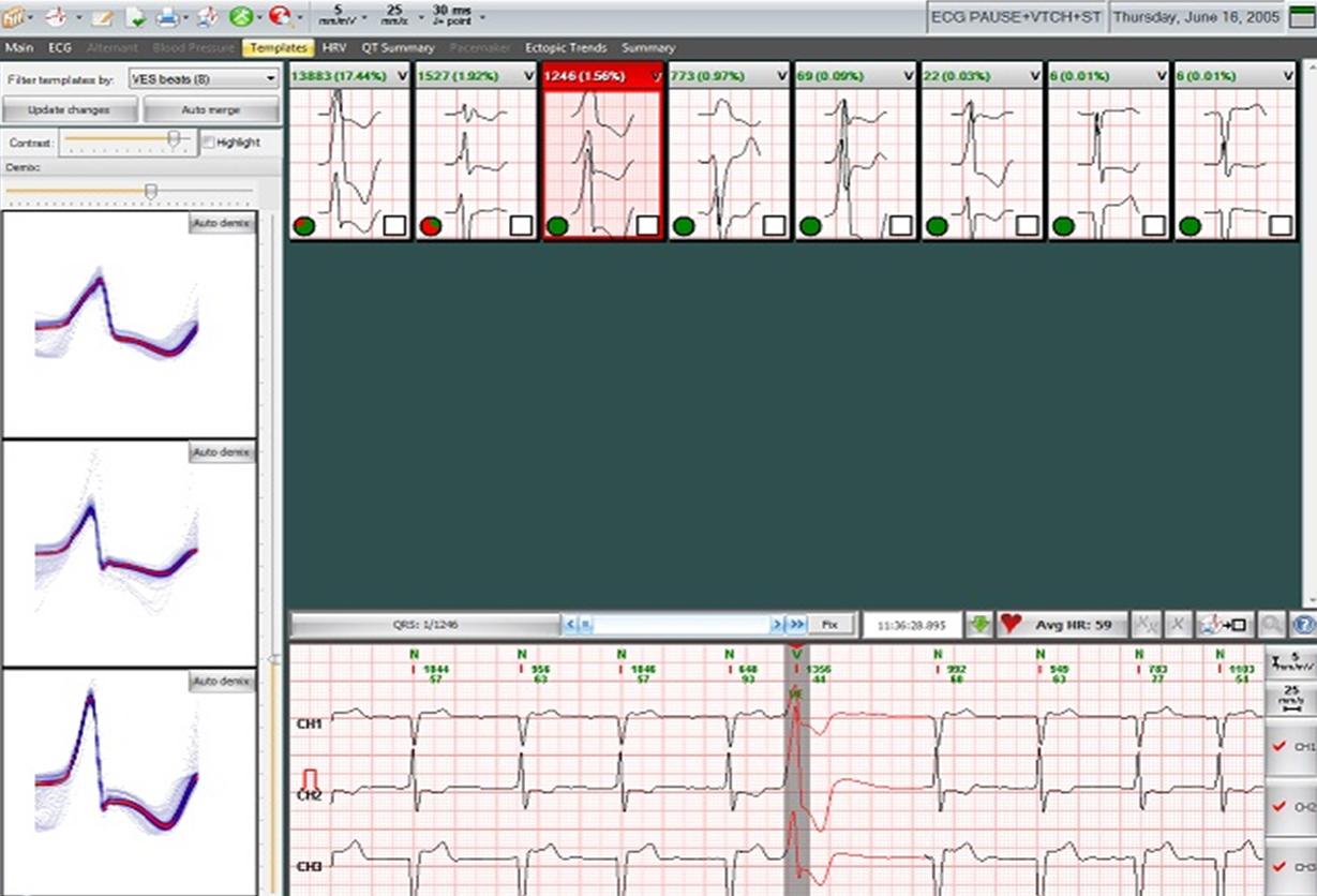 Cardiospy Ecranul Forme