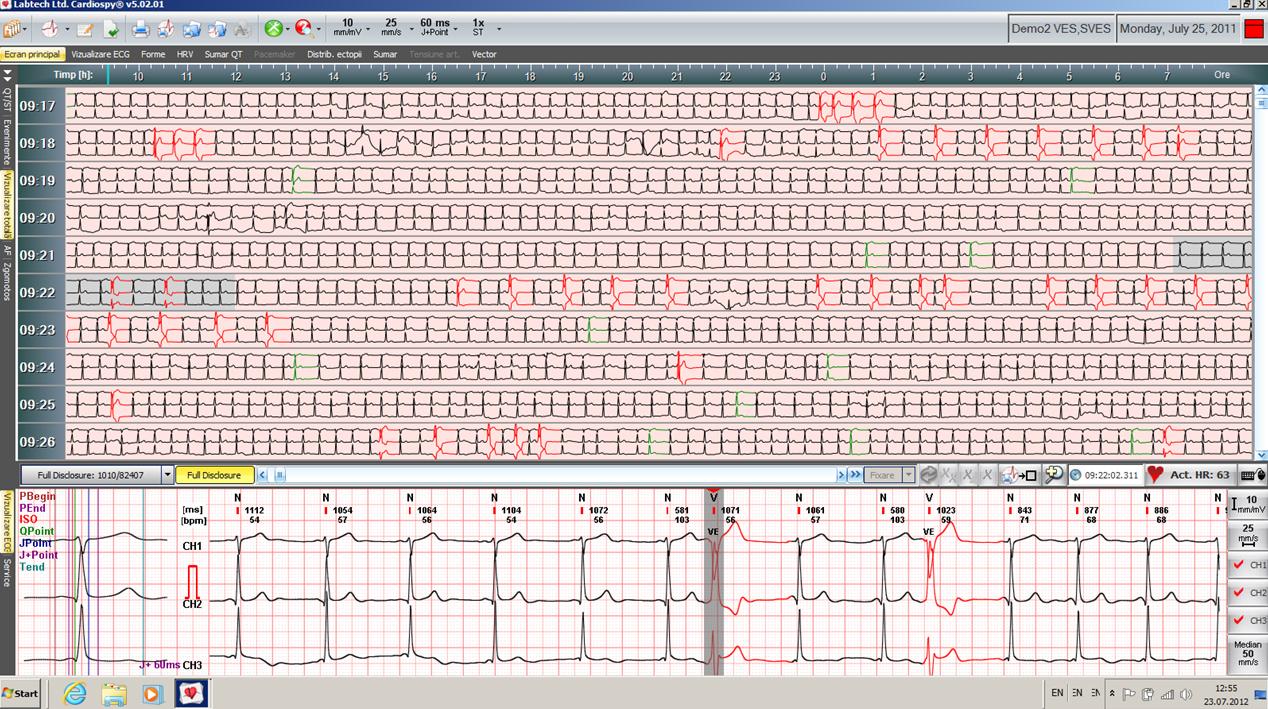 Cardiospy full disclosure